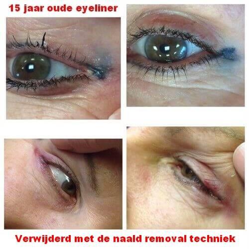 15 jaar oude eyeliner verwijderen met de naald removal techniek