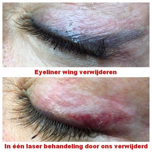 De eyeliner wing compleet verwijderen
