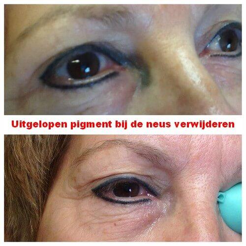 Het uitgelopen pigment bij de neus verwijderen